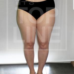 【韓国美容整形】お尻、太もも、脹脛で全部8500㏄を吸引されました!