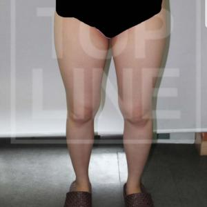 【韓国美容整形】ズボンのサイズが変わりましたーサイズ大変化の患者様♡