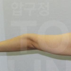 【韓国美容整形外科】部位別、脂肪吸引を受けた患者さん達の手術前後比較