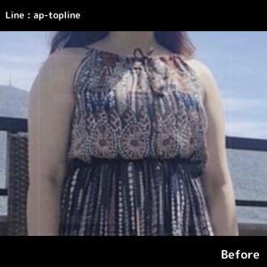 【韓国美容整形】手術前後同じお洋服を着てもこんなに違う♡