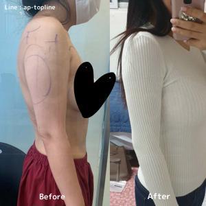 【韓国美容整形】二の腕4400㏄を吸引されたお客様1か月の経過のお写真!