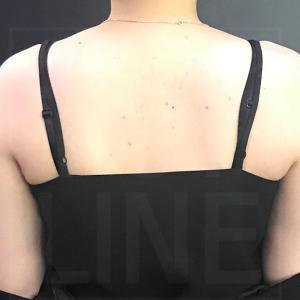 【韓国美容整形】一目で分かる変化!トップラインの脂肪吸引の技術!