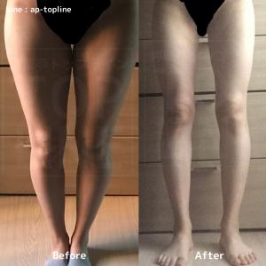 【韓国美容整形】太腿、お尻、シェネルライン4500㏄吸引されたお客様♥
