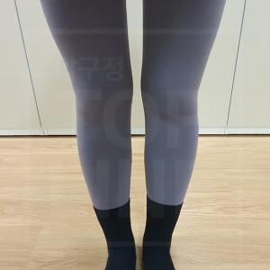 【韓国美容整形】大容量太腿脂肪吸引:レギンスも綺麗に着ましょう!