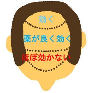 育毛の段階|治療薬の効果と期間