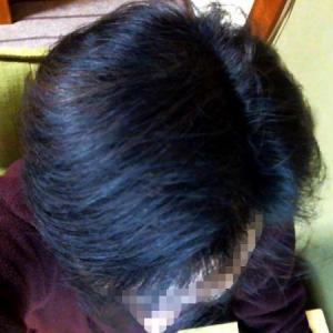 育毛ブログの減少┃試された数々の育毛方法