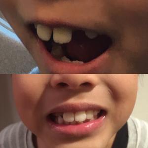 息子の歯並びが整ってきた!!