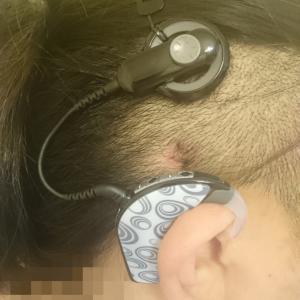 【人工内耳】注意力が大事
