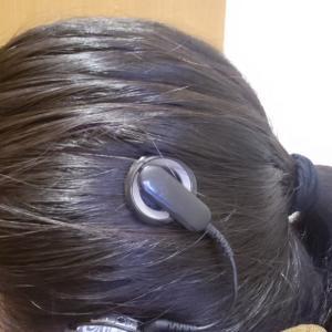 【人工内耳】術後約1年のマグネットの着き具合