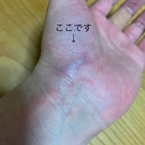手の腫れに驚き夜間緊急に駆け込む