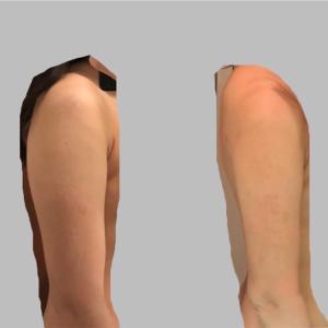 脂肪吸引2ヶ月
