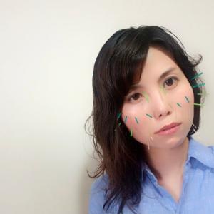 日焼け肌には美顔の鍼♡♡♡