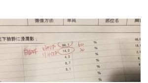コロナ感染疑いの34歳非正規女性「正社員は有休なのに私は解雇」<br />