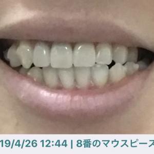 インビザ生活【DAY332】 噛み合わせの変化