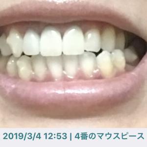 インビザ生活【DAY274】 雑念