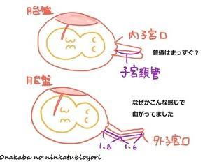 23w1d 妊婦健診⑤