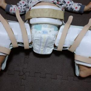 先天性股関節脱臼、ギプスからぶかぶか装具に
