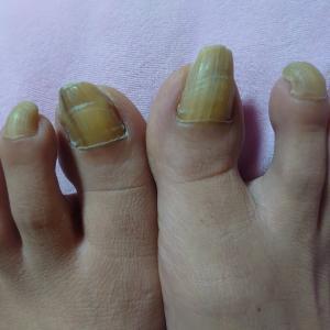 線維筋痛症は爪切りも痛い