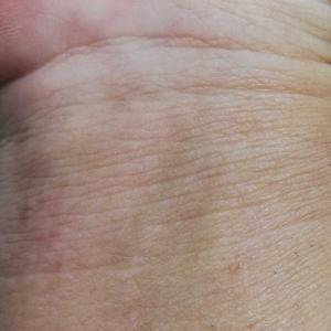 アトピー性皮膚炎を治してみて分かったこと 余談その40
