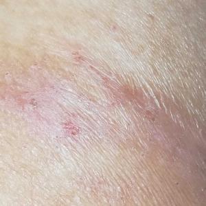 アトピー性皮膚炎を治してみて分かったこと 余談その42