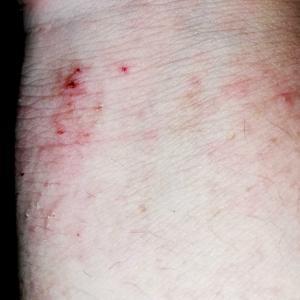 アトピー性皮膚炎を治してみて分かったこと 余談その38