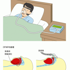睡眠時無呼吸症候群の検査結果