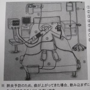 胆嚢摘出手術