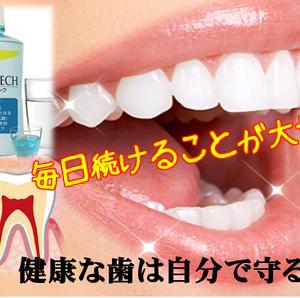 歯周病専用マウスウォッシュ「シシュテック」で口腔ケア