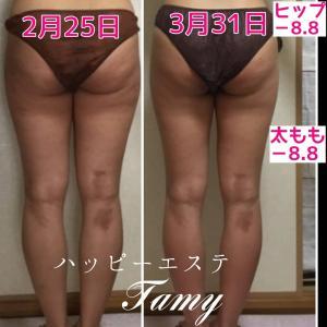 太ももがコンプレックスになってませんか?(^^)お客様の結果です。