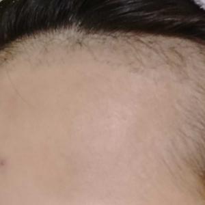 手術2ヶ月目@湘南美容クリニックAGA 福岡院