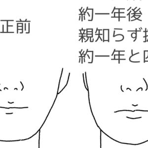 横向きの親知らずの抜歯後と、親知らずを利用する歯科矯正の1年後の顔の変化