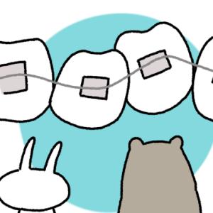 歯科矯正10回目の調整と一般歯科の定期検診 下の歯のディスキング再び