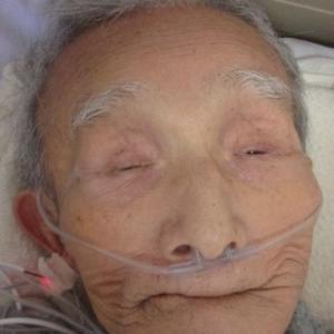 外傷性くも膜下出血の親父の介護(2817)--入院