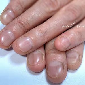 深爪 噛み爪 爪コンプレックス 新潟 燕市ネイルサロン 爪の悩みに寄り添うサロン【ネイルリノ】
