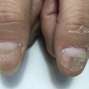 深爪、噛み爪でお悩みの方、コンプレックスを抱く方へのメニュー 新潟燕市ネイルサロン【ネイルリノ】