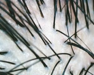 薄毛が心配だとどれくらい本気で感じていますか?クリニックでまずは現状を診断すれば何が本当に必要かわかります。
