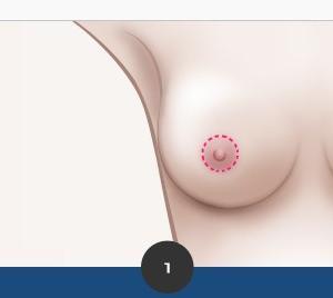 体にぴったりと合うバスト★乳房縮小術★
