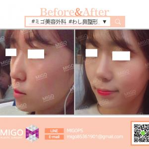 【韓国整形/韓国美容外科】 ★わし鼻矯正★で美しいラインを