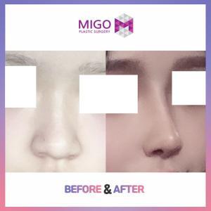 【韓国整形/韓国美容外科】鼻の手術の時、何を考える??