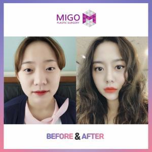 【韓国整形/韓国美容外科】すっきりとした小鼻に!★小鼻縮小★