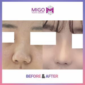 【韓国整形/韓国美容外科】鼻先すっきり!ミゴの★団子鼻整形★