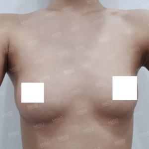 【韓国整形/韓国美容外科】モティバ豊胸手術★1年間の症例写真★