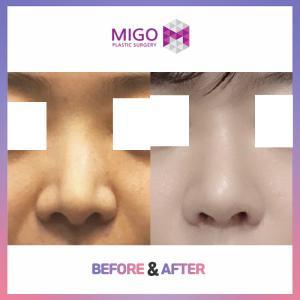【韓国整形/韓国美容外科】プロテーゼなしでも綺麗!★ミゴのノーシリコン鼻整形★