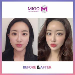 【韓国整形/韓国美容外科】美容面も機能面も改善!ミゴの★曲がった鼻の矯正★