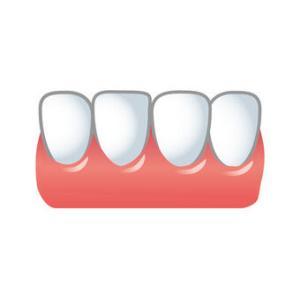 私は下の前歯が3本しかないのと、前歯の一部が犬歯みたいな牙のような歯になってる。成長と共に生えてくると思ったのに遺伝だったとは…