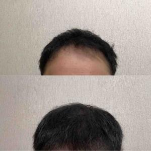 39:35週間経過 ストップ?!