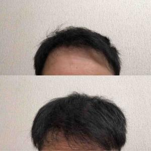 41:37週間経過  前髪ボリュームが。