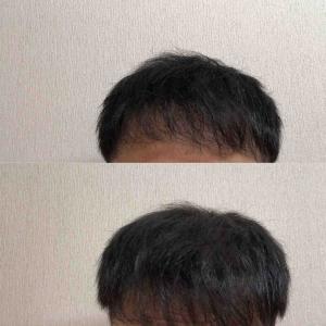 42:38週間経過  前髪伸び伸び
