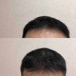 51:47週間経過 散髪後