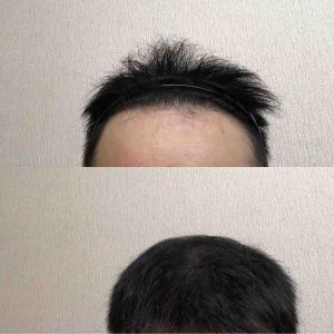 53:49週間経過  髪の毛増えろ